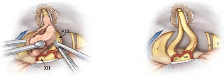 Лечение невриномы слухового нерва :: инфониак