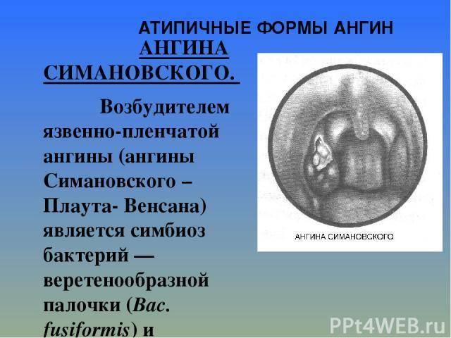 Ангина венсана-симановского — описание, лечение, симптомы
