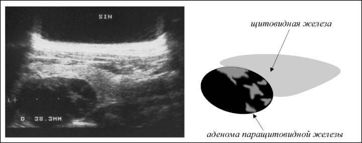 Признаки, диагностика и операция по удалению аденомы паращитовидной железы