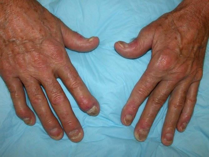 Причины, симптомы и лечение псориатического артрита