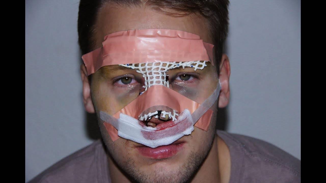 Перелом носа: признаки, лечение, как отличить от ушиба