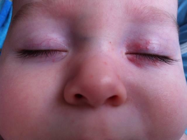 красные пятна на веках у ребенка