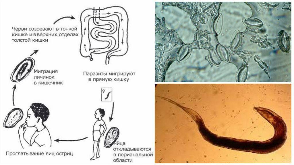 Симптомы, диагностика, лечение и профилактика энтеробиоза у взрослых