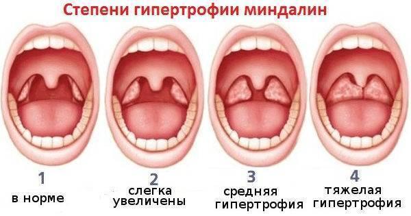 Увеличены миндалины у ребенка в горле