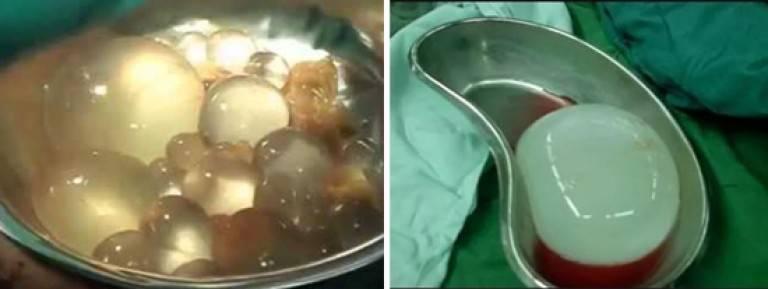 эхинококкоз печени операция
