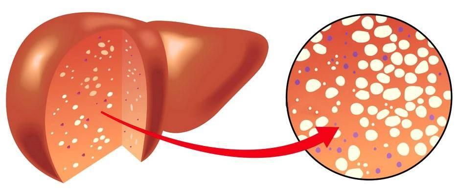Жировой гепатоз с диффузными изменениями в печени