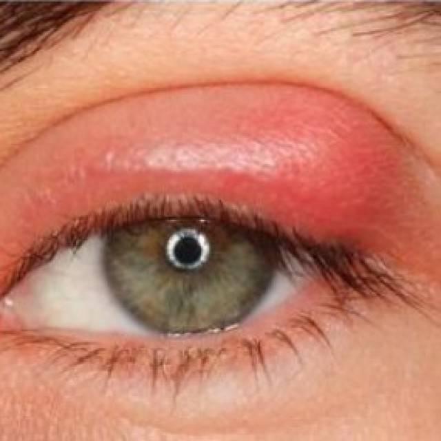 Эписклерит глаза: причины заболевания у взрослых, лечение