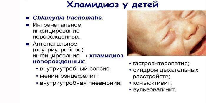 Как лечить хламидиоз у мужчин: препараты, средства, схема приема