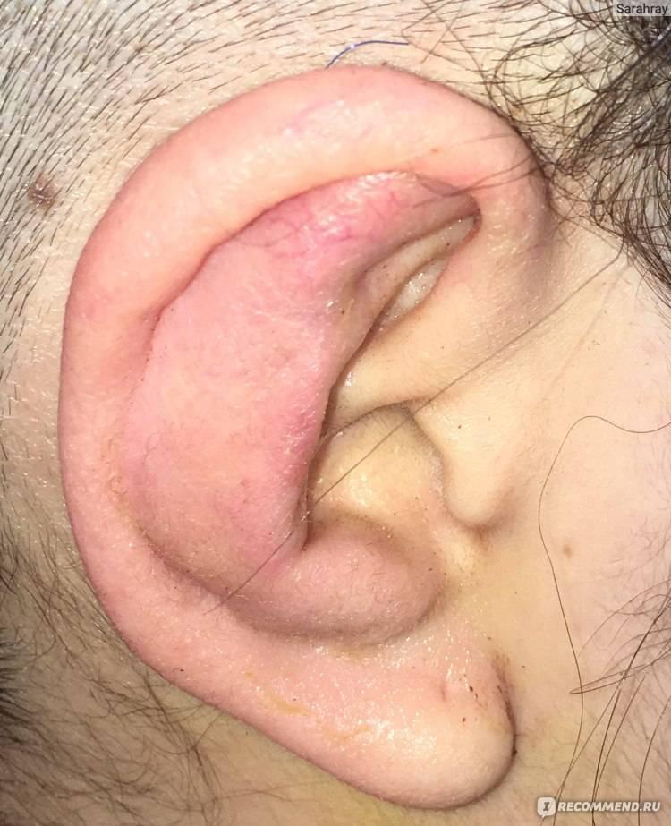 Опухла мочка уха