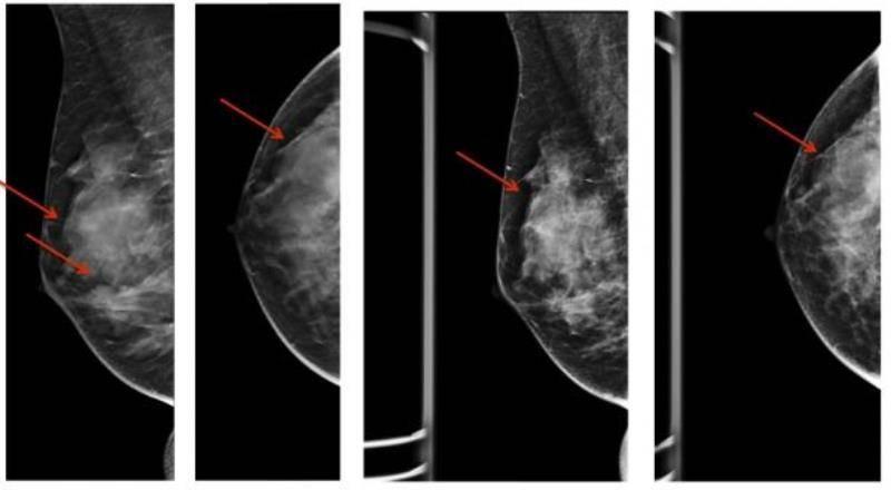 диффузная мастопатия с преобладанием фиброзного компонента