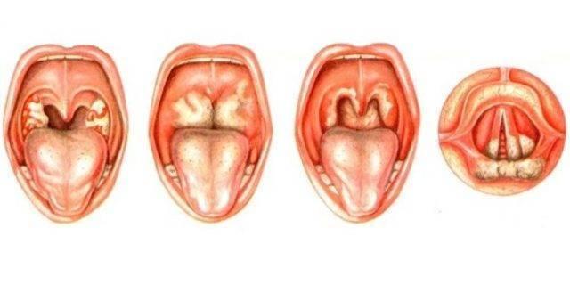 Причины образования белых точек в горле, на нёбе и миндалинах, и методы лечения патологии