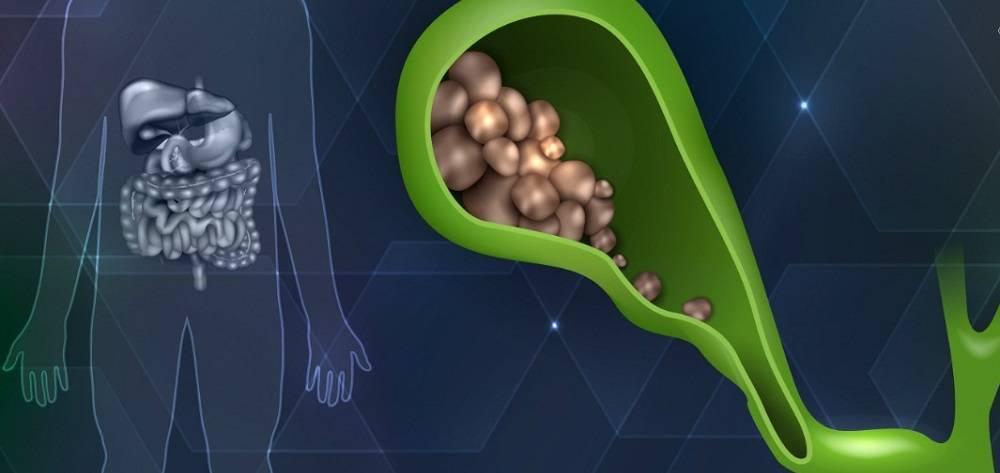 Нужна ли операция при камнях в желчном пузыре