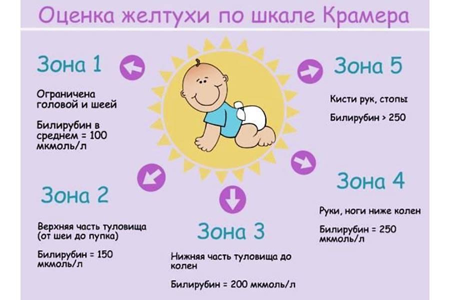 Желтуха у новорожденных: причины и последствия, симптомы и лечение