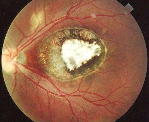 Хориоретинит снижается зрение. лечение и причины появления хориоретинита глаз