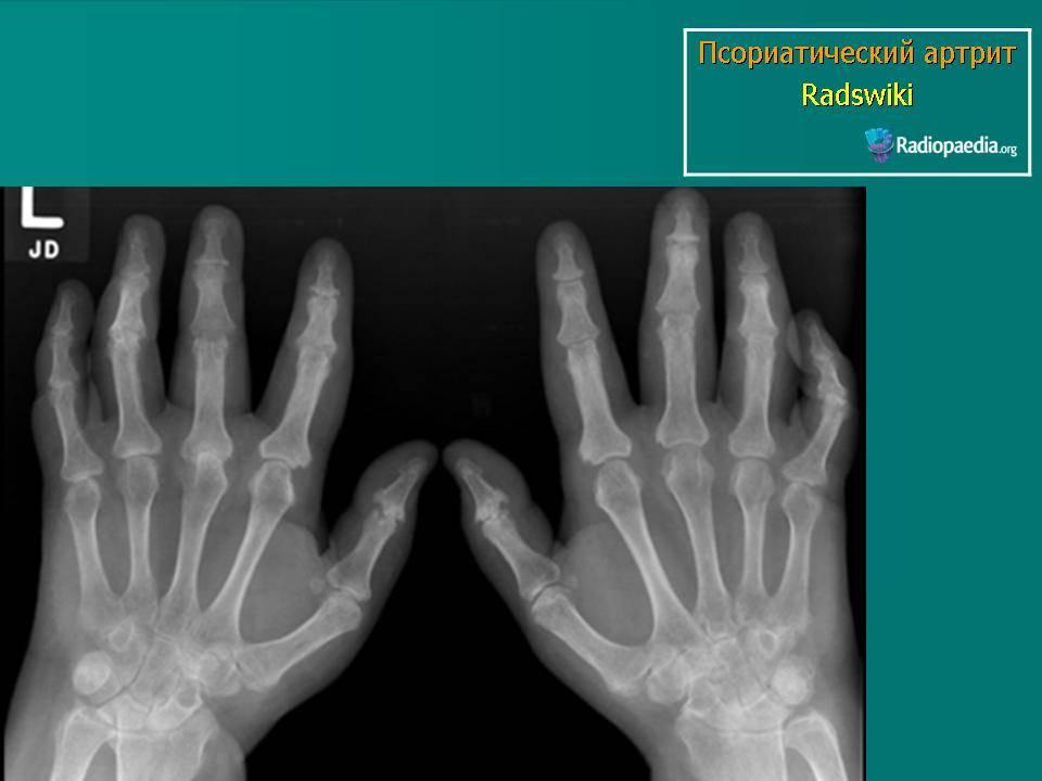 Артропатический псориаз: симптомы, диагностика и лечение | все о суставах и связках