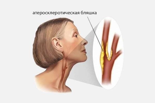 атеросклероз брахиоцефальных артерий стеноз