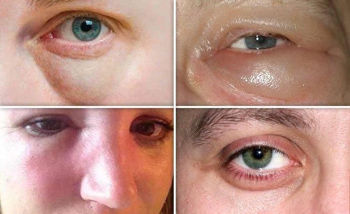 Как снять отек слизистой носа— лечение у взрослого и ребенка