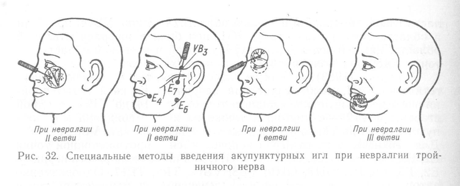 Лицевой нерв: симптомы и лечение невралгии (неврита)