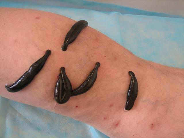 Как выполняется лечение геморроя пиявками (гирудотерапия)?