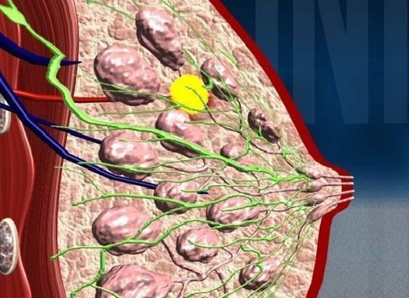 Диффузная фиброзно-кистозная мастопатия молочных желез: симптомы, диагностика и лечение.