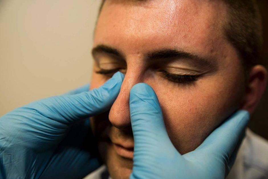 сломанный нос симптомы