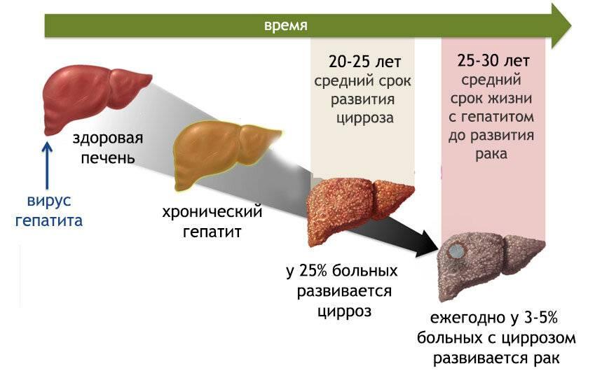 передается ли цирроз печени