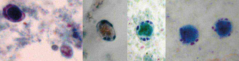 бластоцистоз кишечника