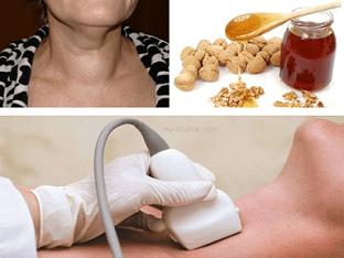 как уменьшить узлы щитовидной железы народными средствами