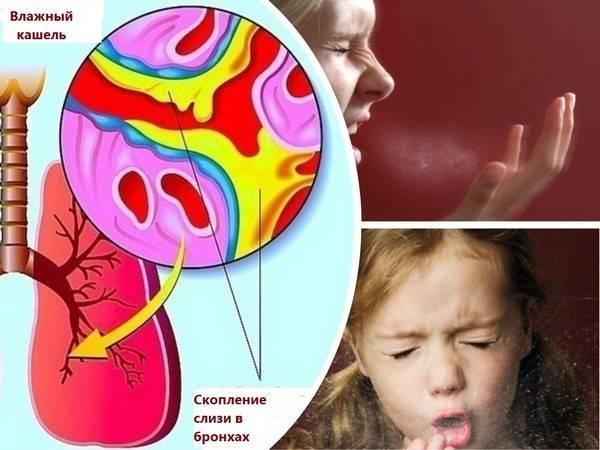 мокрый кашель у ребенка 2 года
