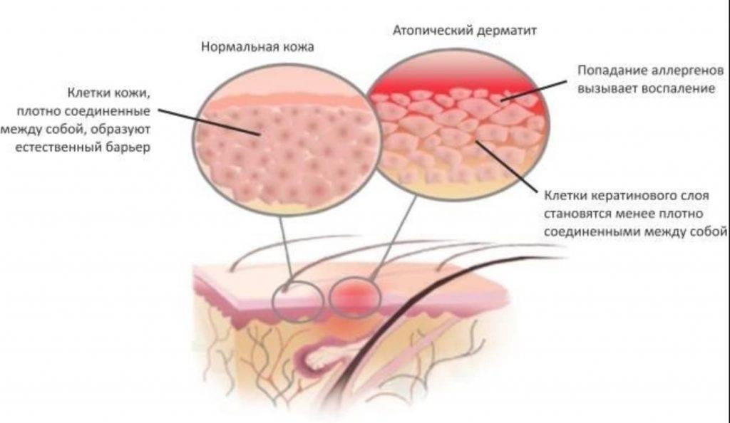 Атопический дерматит у взрослых: лечение народными средствами