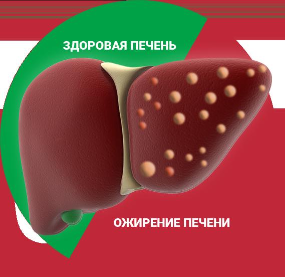 Ожирение печени: профилактика, симптомы и лечение