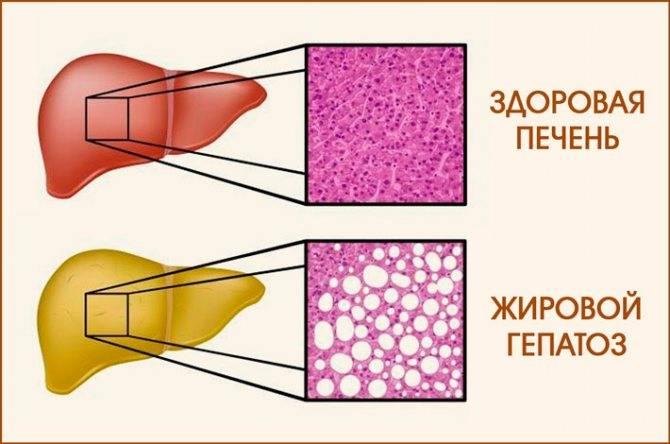 жировой гепатоз лечение народными средствами свеклой