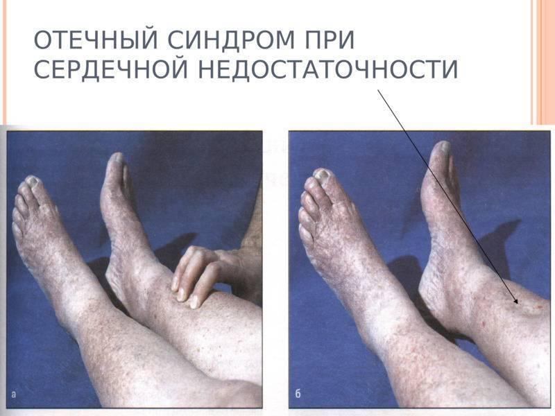 Отеки ног при циррозе печени лечение
