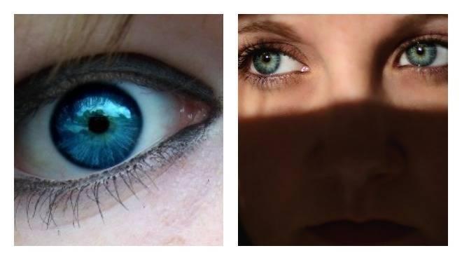 почему в глазах черные точки