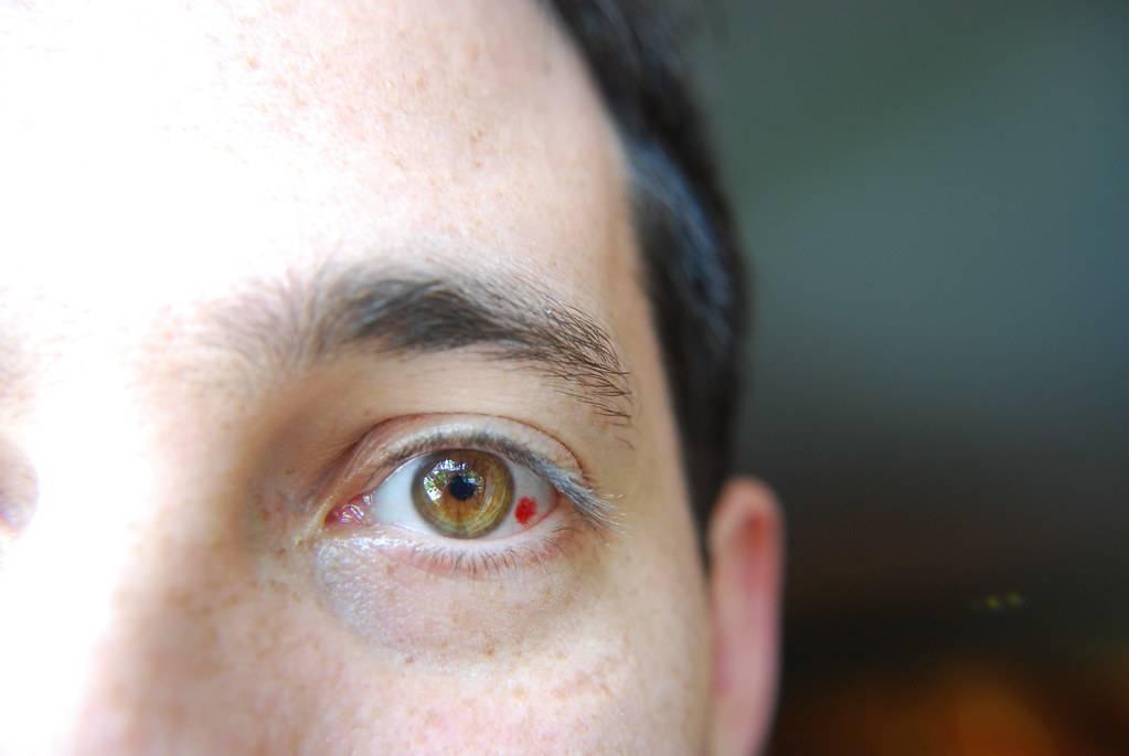 красное пятно на глазу