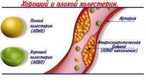 При повышенном холестерине можно есть чернослив