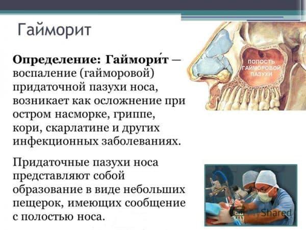 Гайморит без температуры дадут ли больничный