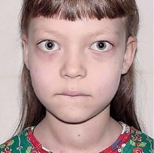 увеличена щитовидка у ребенка