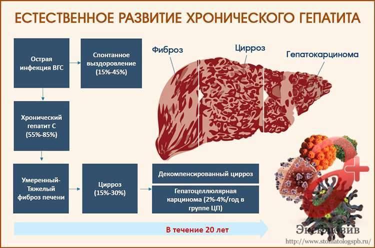 Гепатит с: сколько люди с ним живут? продолжительность жизни с лечением и без него.