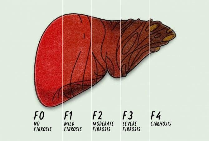 фиброз второй степени печени
