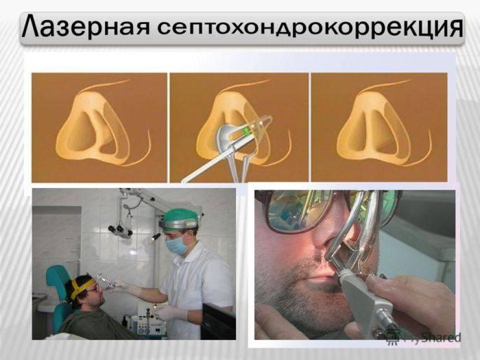 как исправляют перегородку носа