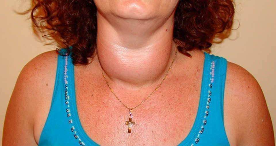 Симптомы заболевания щитовидной железы у женщин, фото | pro shchitovidku