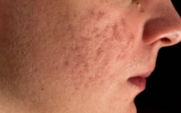 Подкожный клещ на лице - что это и как лечить
