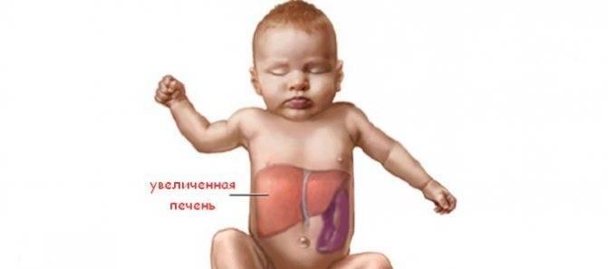 Цирроз печени у детей