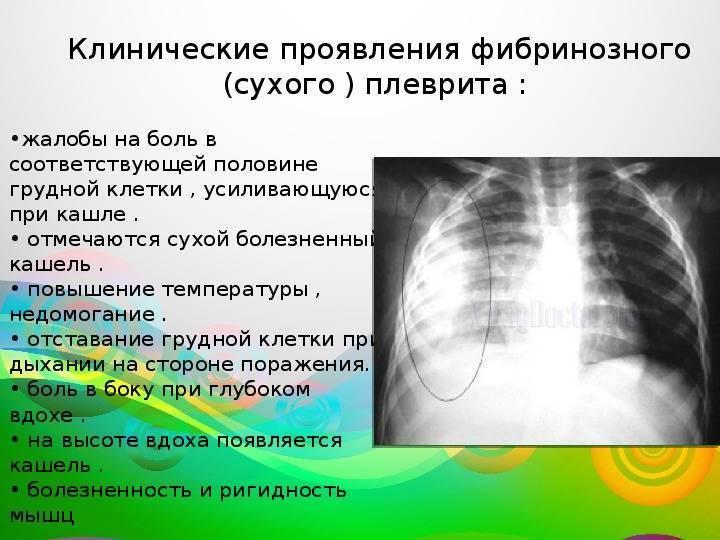 Колющая боль в грудине при кашле