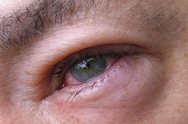 Сильно покраснел глаз слезиться и болит