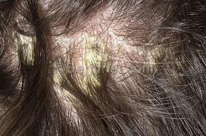 Лечение себорейного дерматита на голове аптечными препаратами
