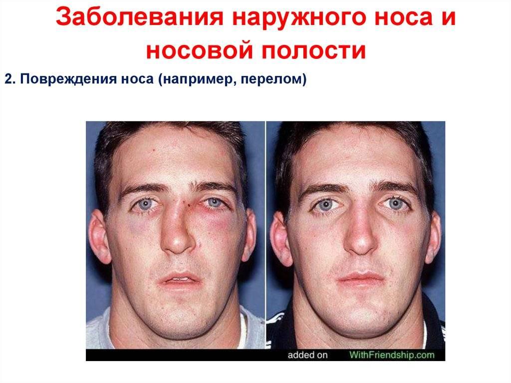 болезнь носа