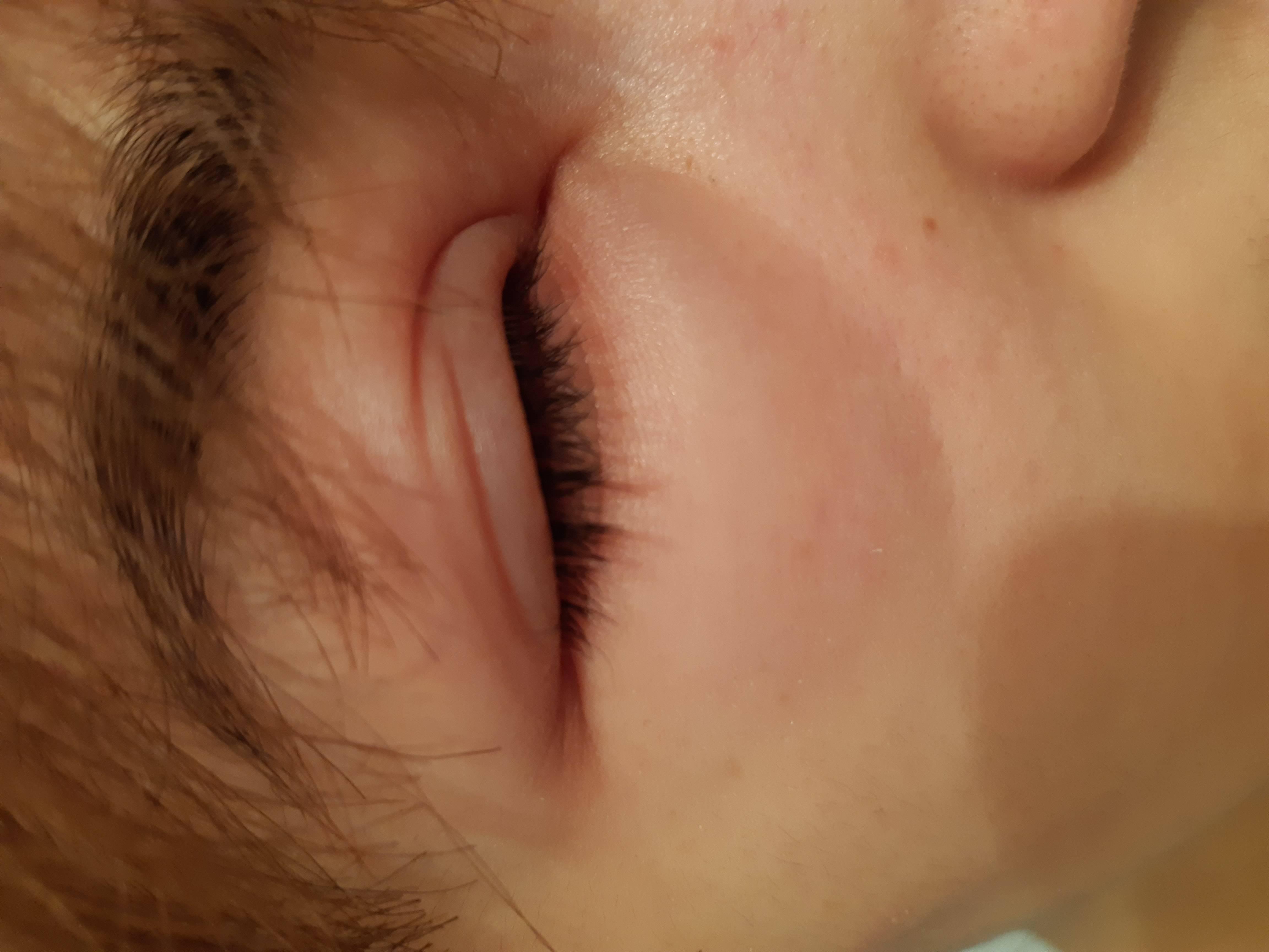 Почему болит глаз где веко