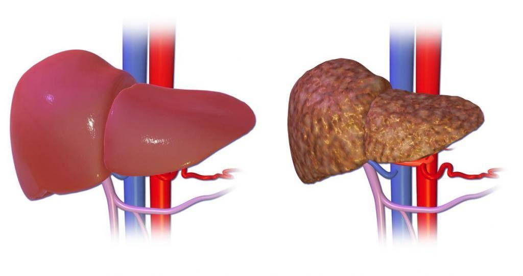 Кардиальный цирроз печени: лечение и симптомы